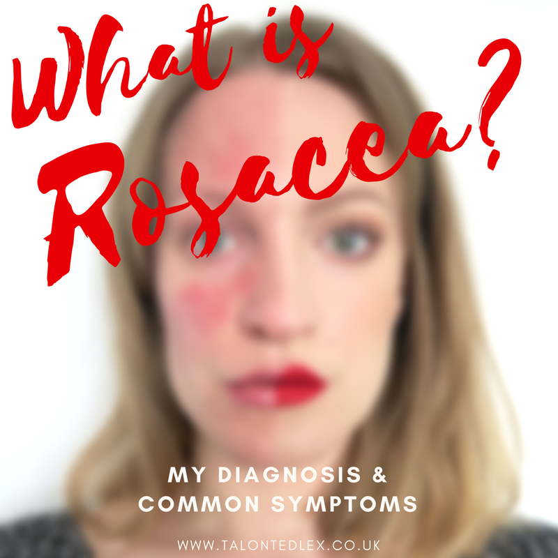 What is rosacea? My diagnosis, common symptoms, and causes