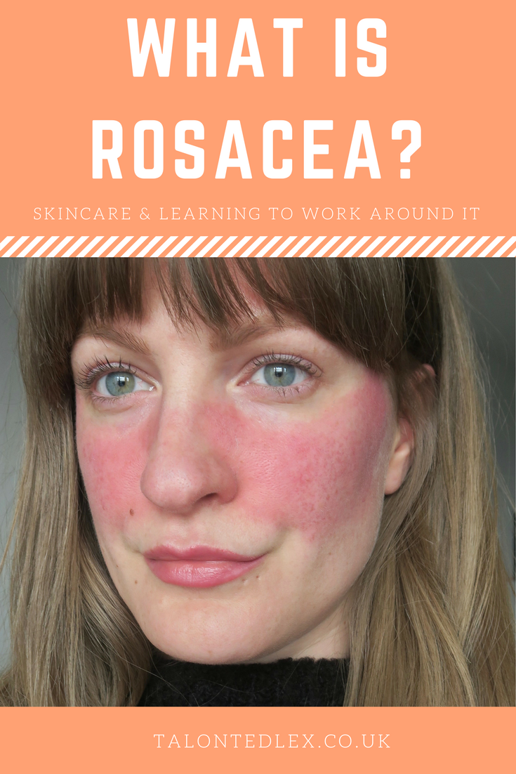 What is rosacea? And how can skincare help?