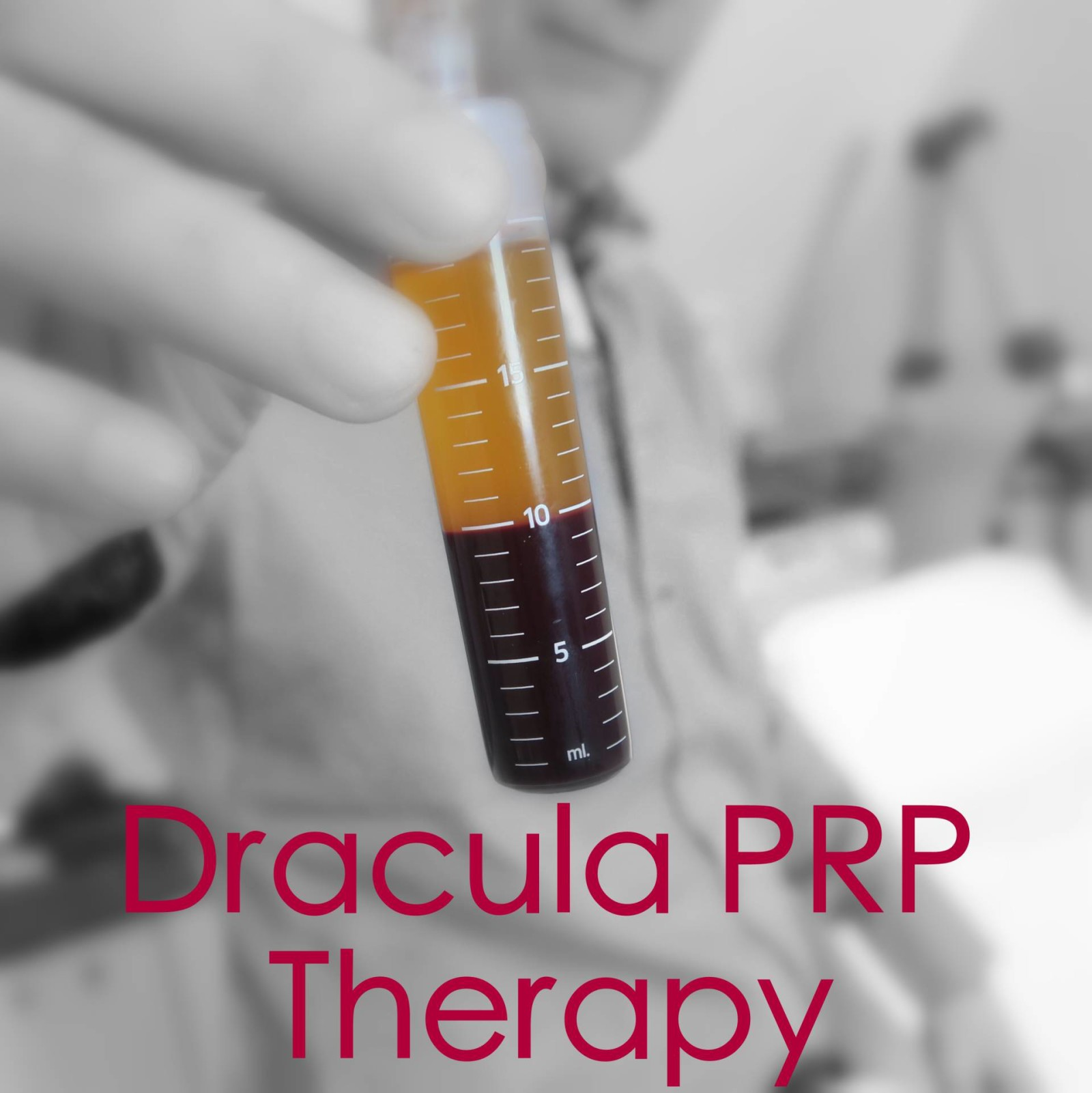 Dracula PRP Therapy