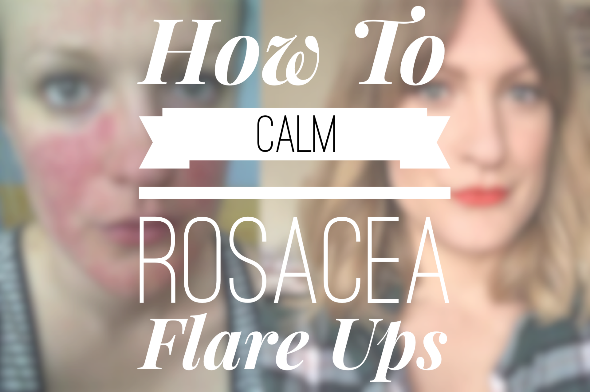 How To Calm Rosacea Flare Ups