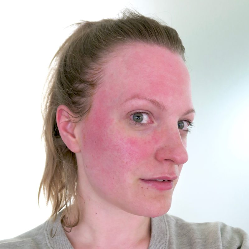 Friday Faves - just after my facial peel. It's not as bad as it looks I promise! This redness went away in about 10 minutes.