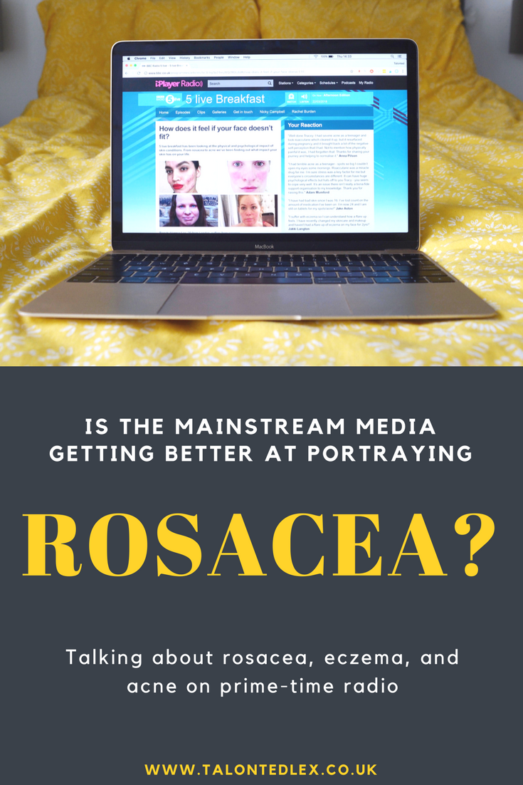 In My Skin: talking about skin conditions and how the mainstream media are starting to talk more about skin conditions #rosacea #adultacne #eczema