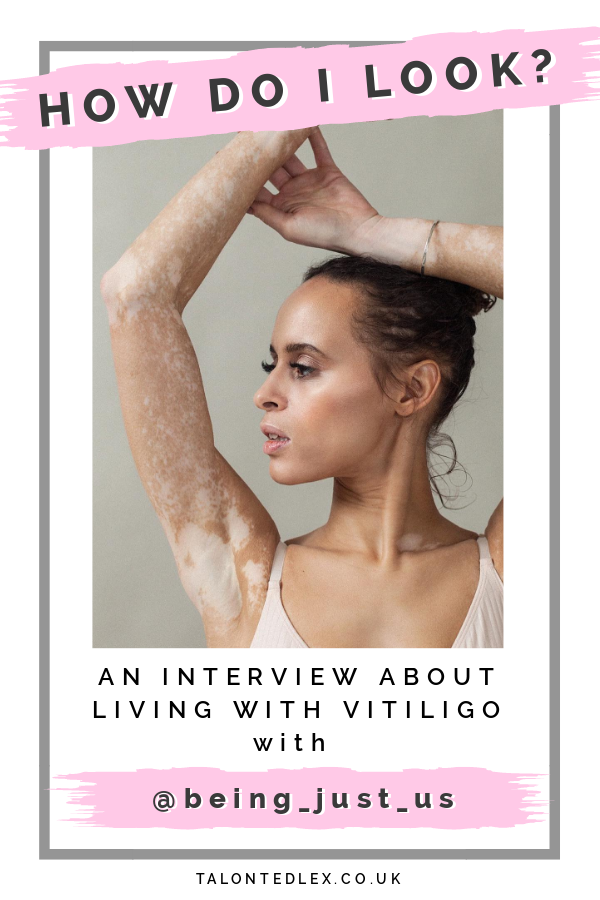 Repin and click to read my interview with Natalie (@being_just_us), Vitiligo and skin positivity advocate. She talks about growing up with Vitiligo, how representation has changed, and how she has grown to love her skin. #talontedlex #skinpositivity #vitiligo