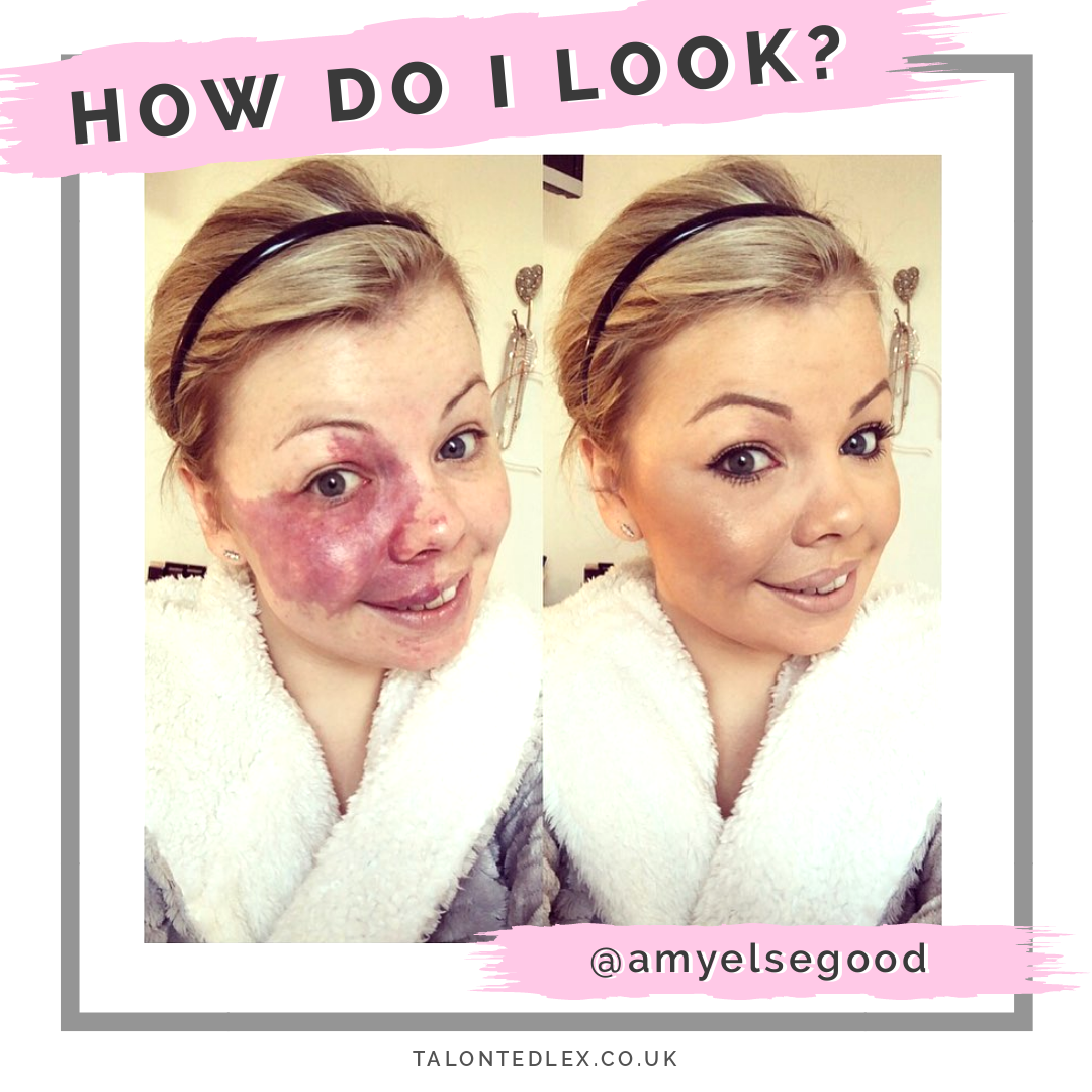 An interview with Amy about her Port Wine Stain. We chat skin positivity, birthmarks in the media, and the impact of skin differences on mental health. Amy shares her make up tips and advice. #talontedlex #birthmarktips #makeupadvice