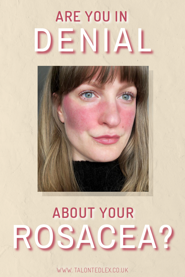 Are you in denial about your rosacea? I've written about how denial can be useful, but why it's stopping you taking control of your skin. How to help your rosacea, how to heal your rosacea. #talontedlex #rosacea #rosaceatips