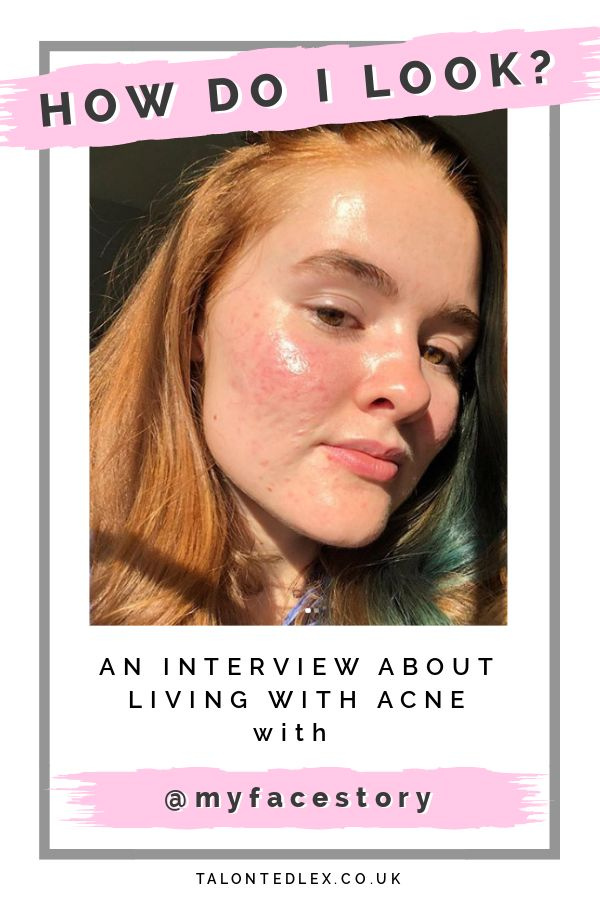 Read my interview with Kali (@myfacestory ), acne and skin positivity advocate. She talks about representing acne skin as part of the Sephora Squad, how she says positive, and why acne doesn't define her. #talontedlex #skinpositivity #acnepositivity