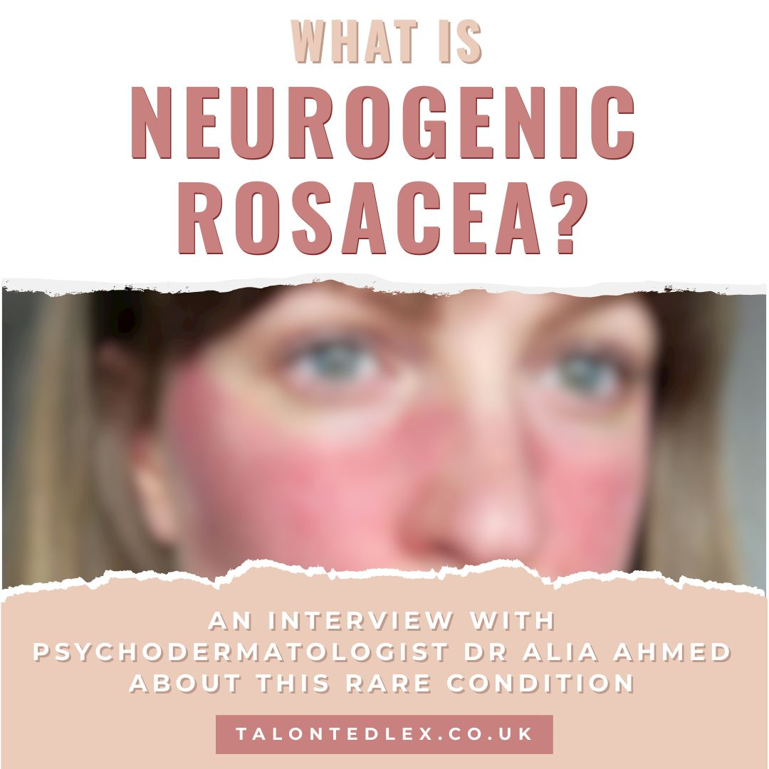 What is neurogenic rosacea? I interviewed Dr Alia Ahmed, renowned Psychodermatologist, about this rare rosacea subtype. What is rosacea? How to treat rosacea? #talontedlex #rosaceatips #skincondition #rosaceaadvice