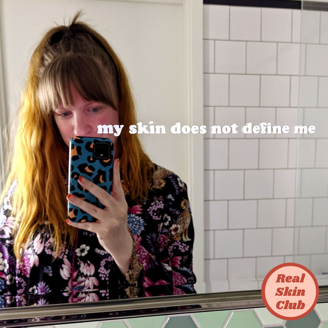 'my skin does not define me' - skin positivity mirror stickers from Real Skin Club, to build confidence and improve self-love.