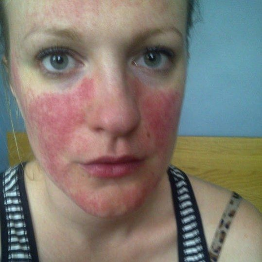 15 YEARS OF ROSACEA